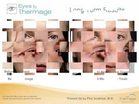Thermage Eye Lifting & Hooding Reduction Sydney