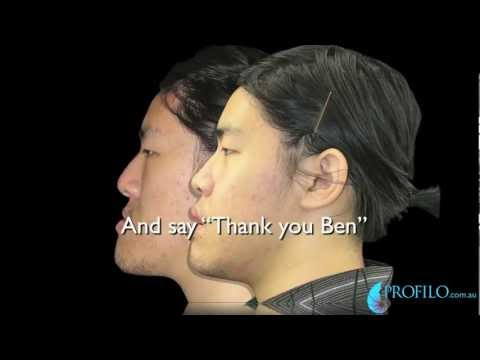 Ben has Maxillary Advancement Jaw Surgery Distraction MAD for underbite open bite correction.mov