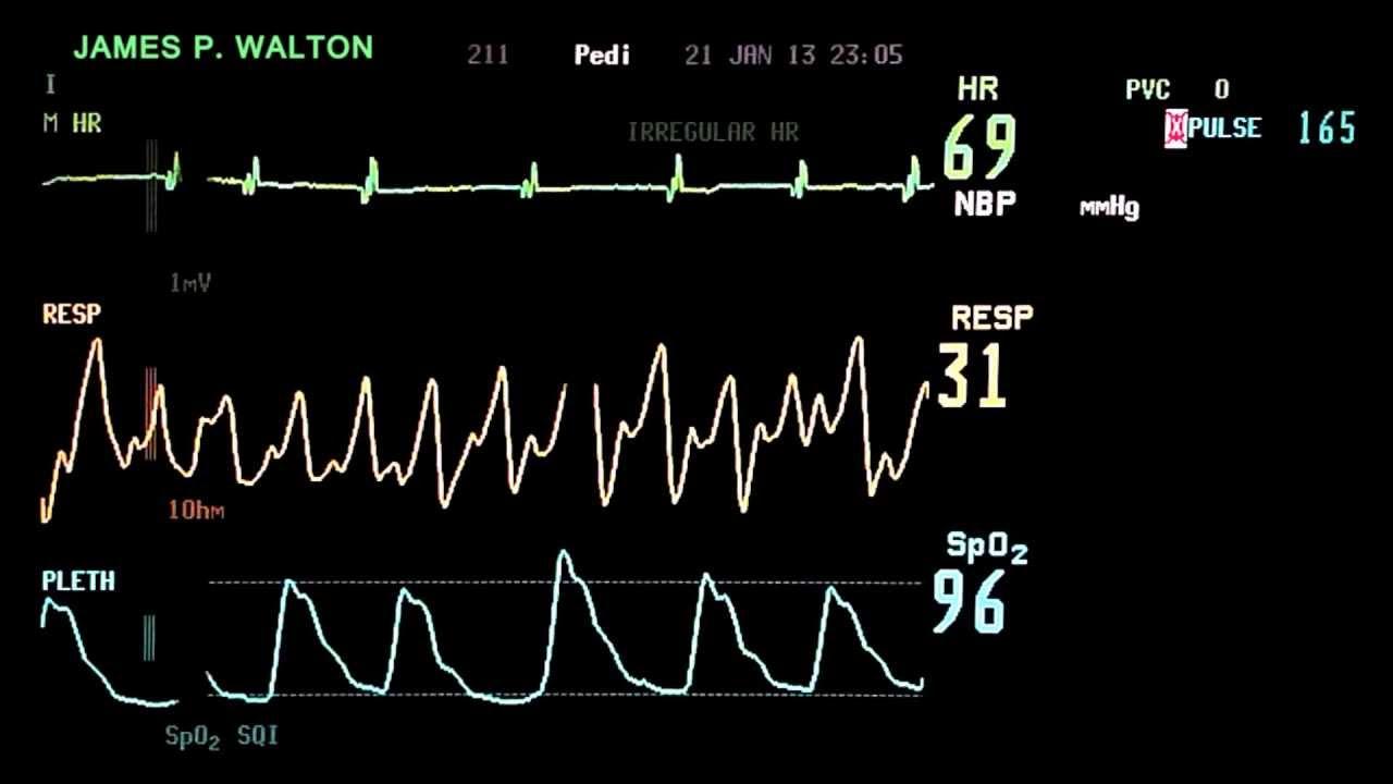 How to Read an EKG How to Read an EKG new pics