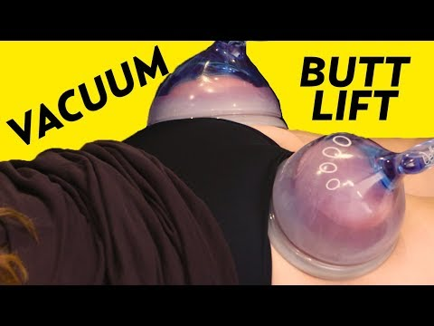 Vacuum Butt Lift? A Cellulite Treatment to Get a Big Booty! | The SASS with Susan and Sharzad thumbnail