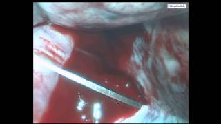 Нож у аорты - торакоскопия. Knife near the aorta - thoracoscopy.