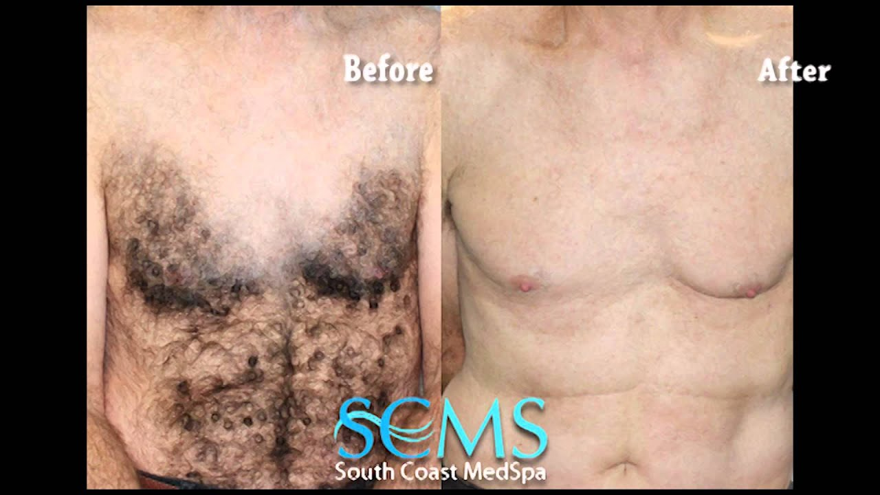 6 laser tattoo removal before and after peel before for Tattoo removal in louisiana