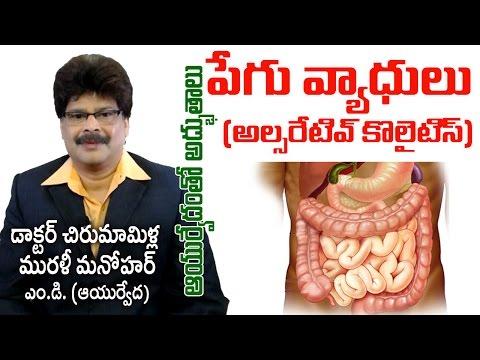 Ulcerative Colitis | Ayurvedic Treatment | Prof. Dr. Murali Manohar Chirumamilla, M.D. (Ayurveda) Photo Image Pic