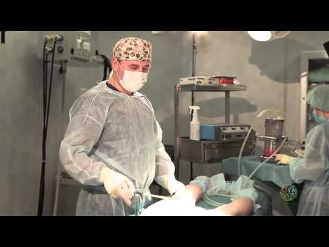 Липомоделирование операция  Андриевский А Н