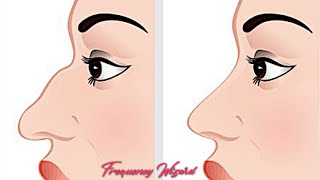 Get Rid Of Bump On Nasal Bridge of Nose Fast! (rhinoplasty) Subliminals Frequencies Hypnosis