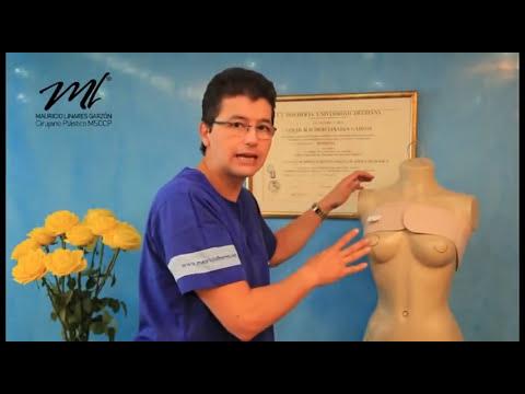 Mauricio Linares cicatrización y masajes Cirugía de Senos