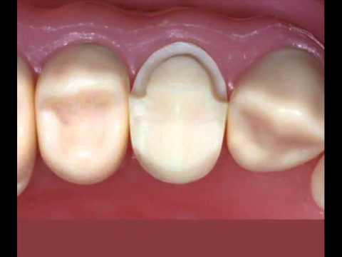 Metal Ceramic Crown Preparation On Premolar Fourthmolar