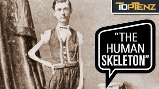"P. T. Barnum's 10 Most Famous Human ""Freak"" Show Attractions"