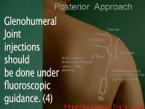 Shoulder Joint Injection