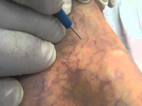 Chirurgia caldamente vascolare in ospedale di Botkin