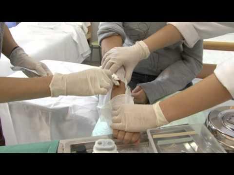 La medicina contra el hongo de las uñas el tratamiento