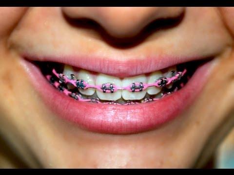 จัดฟัน ดัดฟัน ใน 1 นาที ( Braces in 1 minute)