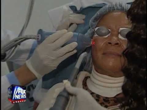 Fraxel Laser Treatment for Acne on Fox News
