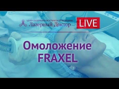 Лазерное омоложение Фраксель (Fraxel) - Periscope