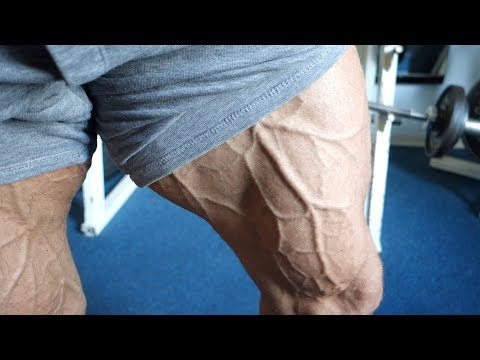 Road to Olympia #10 | Haxen müssen wachsen | Beintraining