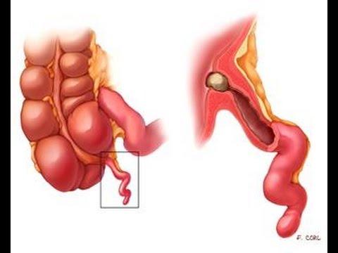 Ruptured appendix symptoms in adults