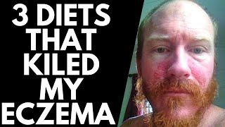 3 DIETS that made my ECZEMA WORSE ( and spread)