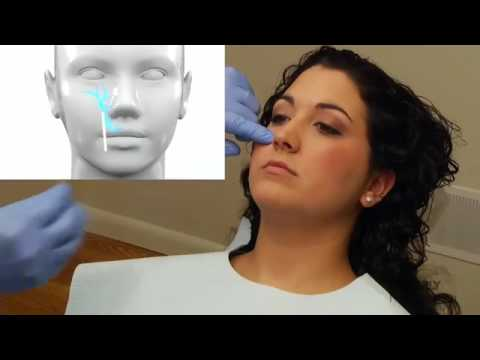 Maxillary Anesthesia Injection Techniques | DENTSPLY Pharmaceutical