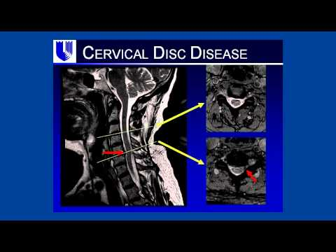 A Pain in Your Neck: Discussion of Cervical Degenerative Disk Disease
