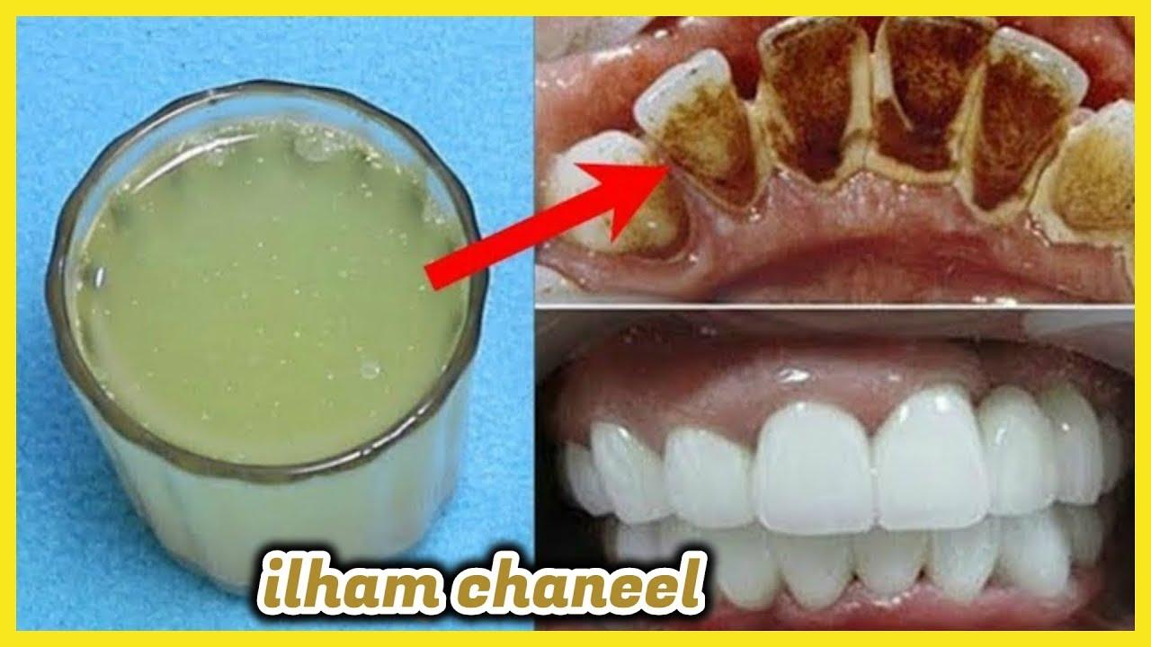تبييض الأسنان في دقيقة واحدة مضمض به فمك وسوف تُبهرك النتيجة سيسقط الجير والإصفرار سيزول للأبد