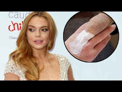Lindsay Lohan Gets Her Ring Finger Chopped Off In Boating Accident