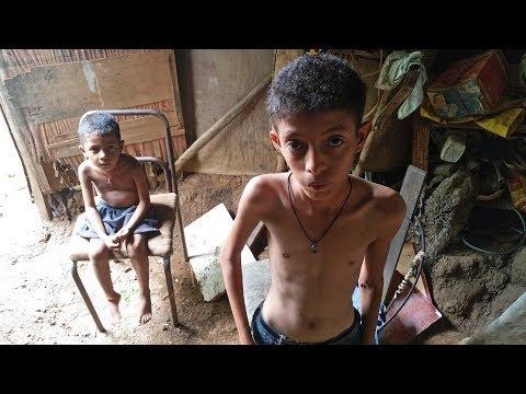 Hambre en Venezuela: el drama de la severa desnutrición infantil
