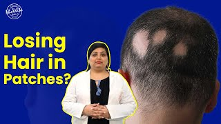 Alopecia Areata: Causes, Symptoms & Treatments | Explained by Dr Nivedita Dadu- Expert Dermatologist