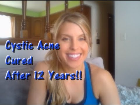 Cystic Acne cured after 12yrs