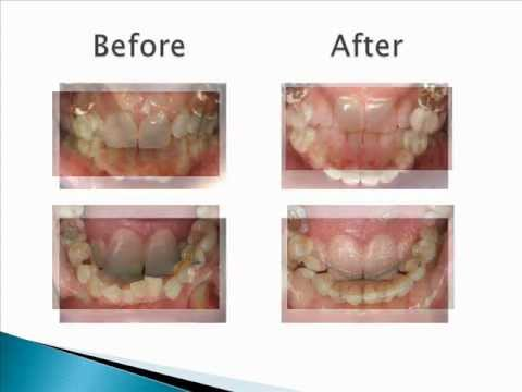 Clearwater FL Dentists - Invisalign Before and After Pictures
