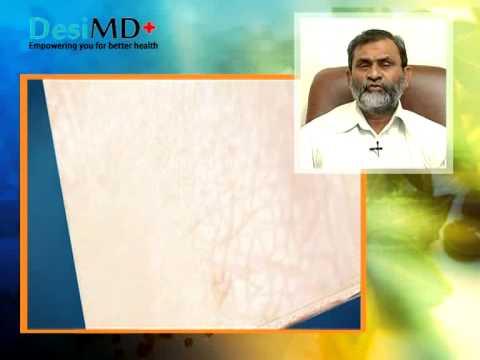 Vitiligo and Prevention Methods - Precautions - DesiMD