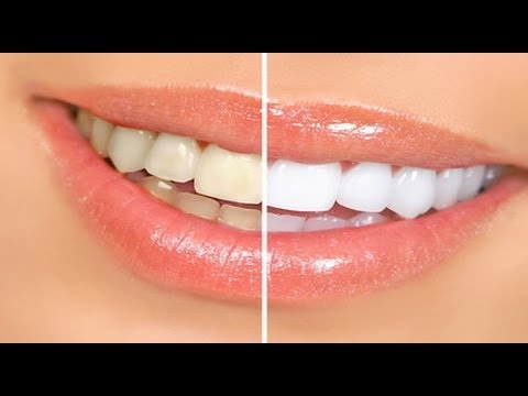 Beauty Tips - Simple steps for at home Teeth Whitening - Beauty Tips