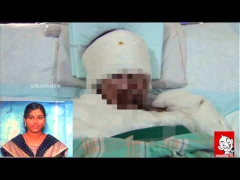 ACID ATTACK VICTIM VINODHINI'S LAST VOICE video