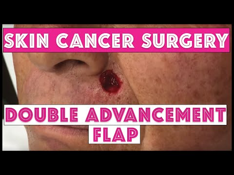 Skin cancer surgery: Double Advancement Flap on upper lip