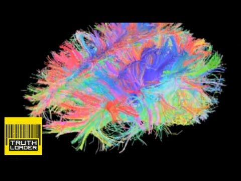 Brain Poppers