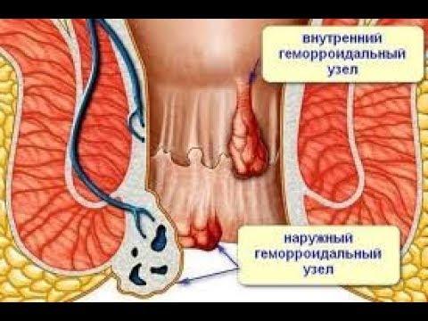 Геморрой лечение в домашних условиях кондаков