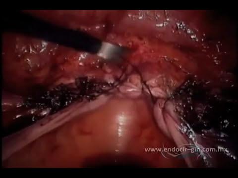 Histerectomía Total Laparoscópica