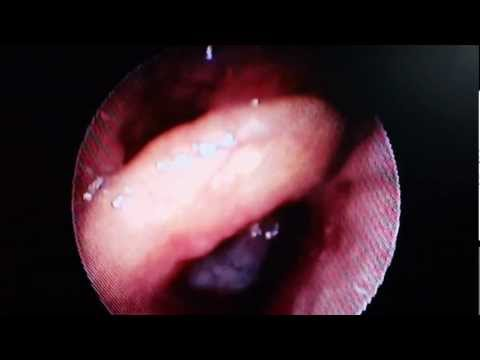 Endoscopy during Sleep - Snoring and Sleep Apnea - Dr Paulose FRCS (ENT)