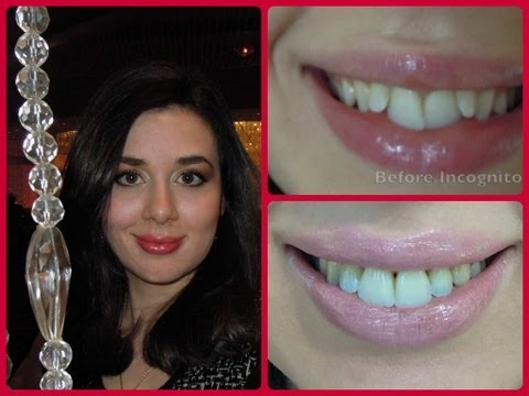 • Incognito Lingual Braces Treatment Halfway Update: Before and After •