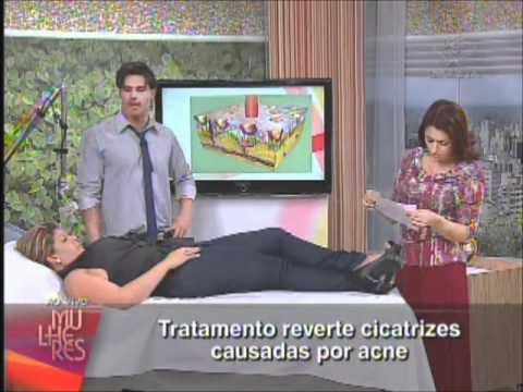 ELIMINE AS CICATRIZES DE ACNE- ENTREVISTA DR. FERNANDO FREITAS-PARTE1