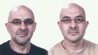 download lagu Deaf Twins Choose Death Over Blindness gratis