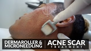 Dermaroller | Microneedling Acne Scars | Skin Resurfacing | Los Angeles, California