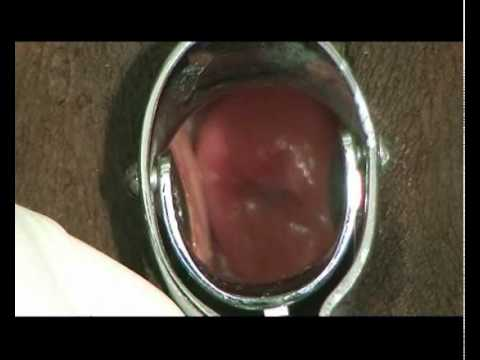 Obstetrics And Gynaecology : Clinical Examinations Collection - Pelvic Examination video