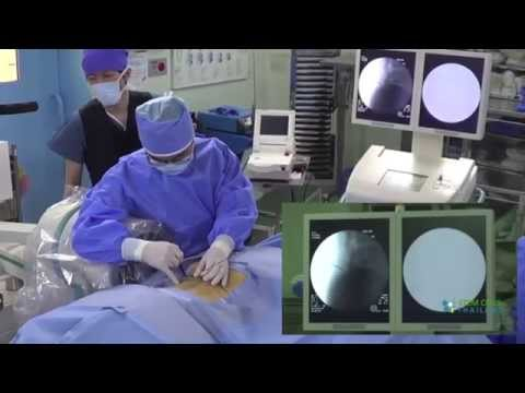 Treatment for Degenerative, Bulging and Herniated Discs Minimally Invasive Stem Cell Therapy
