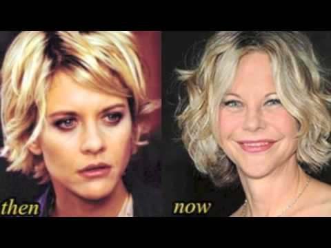 Meg Ryan Before and After Plastic Surgery Photos