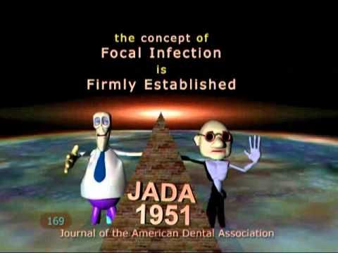 Rooted 2006 Root Canal dentistry endodontics formaldehyde mercury cancer fluoride)