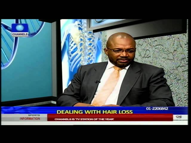 Health Matters: Dealing With Hair Loss Pt 2