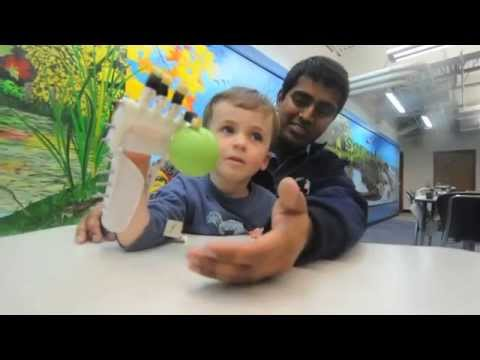 17 year old designs prosthetic hand for 3 year old