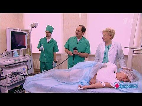 0 - Колоноскопія опис та підготовка