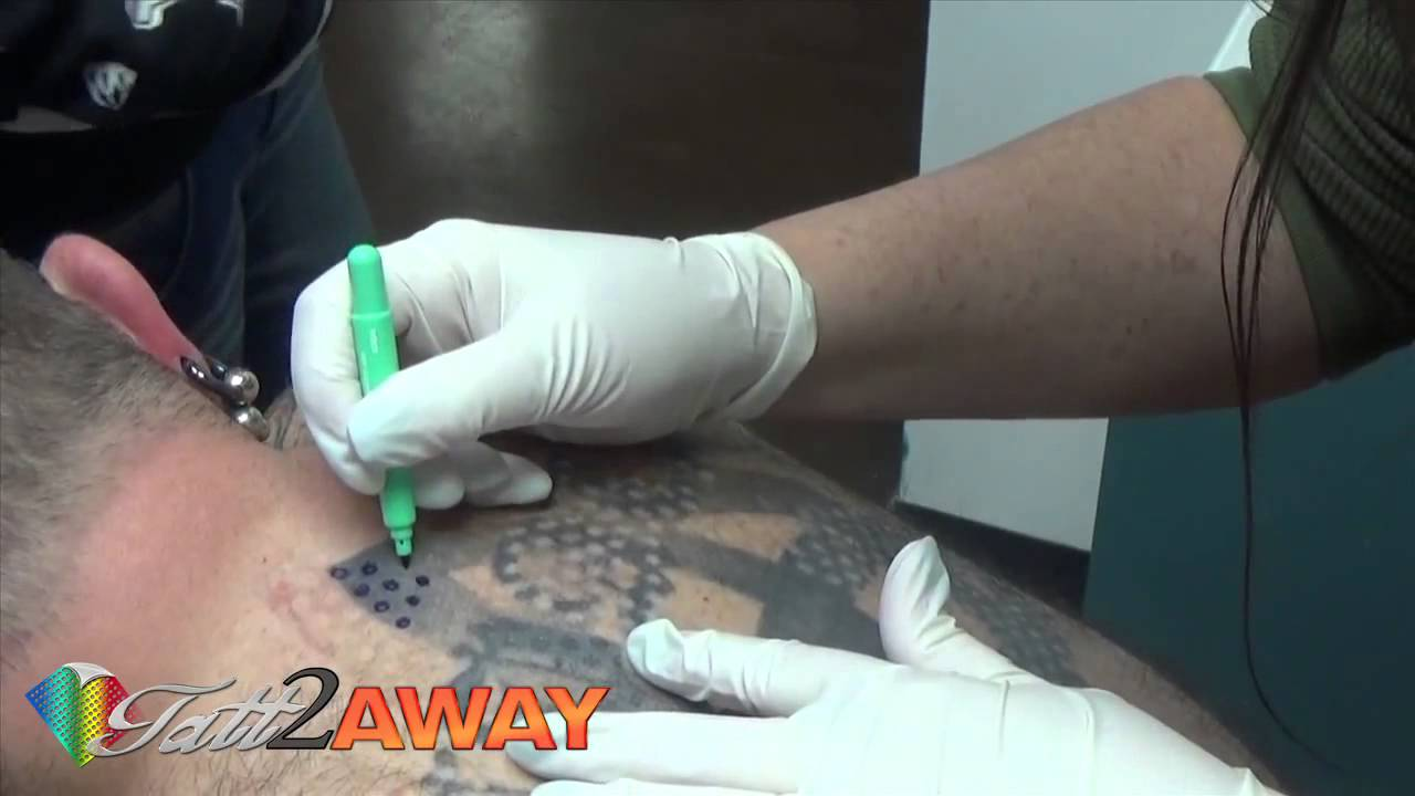 Laser Tattoo Removal Course Toronto Tattoo Removal