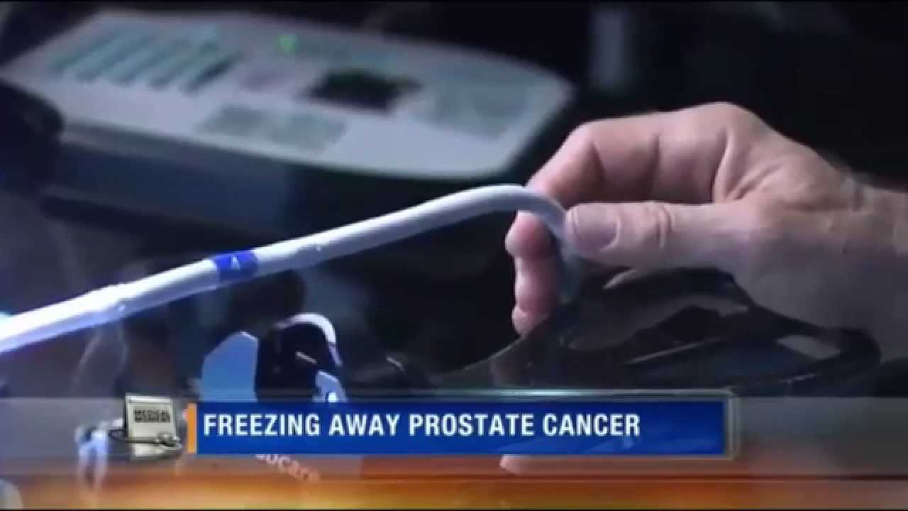 prostate cancer term papers
